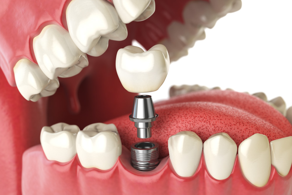 A dental implant topped with a dental crown as a permanent tooth replacement solution in St. George & Ivins, UT